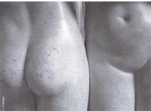 Le vaginisme ou le langage du corps. Laure Mourichon pour Revue Sexualites Humaines 12
