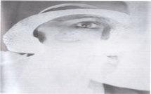 Devisager la douleur : Traitement hypnotique d'une algie vasculaire de la face. Revue Hypnose & Thérapies Brèves 23. Par Jean-Pierre ALIBEU et Maud GENETIER